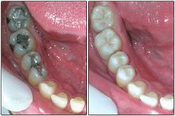 Obturación endodóntica |Curso Auxiliar Clínica Dental